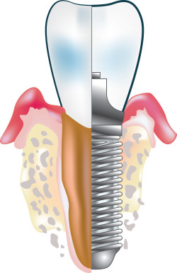 7 Things You Need To Know About Dental Implants