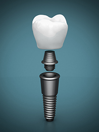 Titanium dental implant, abutment, and crown