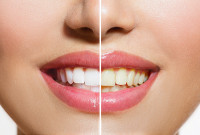 Teeth-Whitening Can Make Your Smile Shine Again