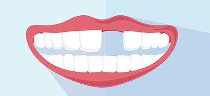 Guide to Dental Emergencies